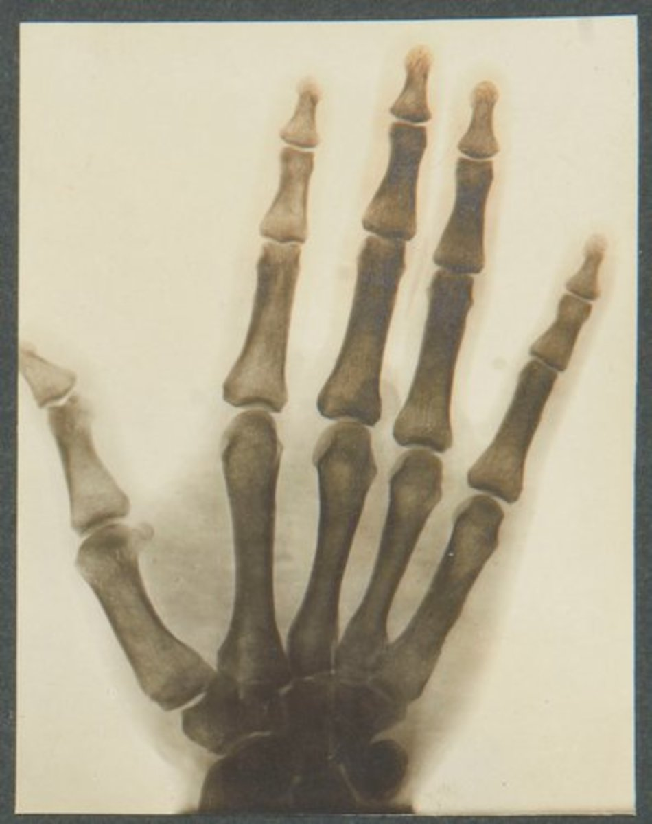 """This radiograph of an uninjured hand belonging to an Indian soldier of the First World War was taken to draw comparison with an injured hand, 1914-15, and is from the collection of King George V; 3-3/4"""" x 3""""."""